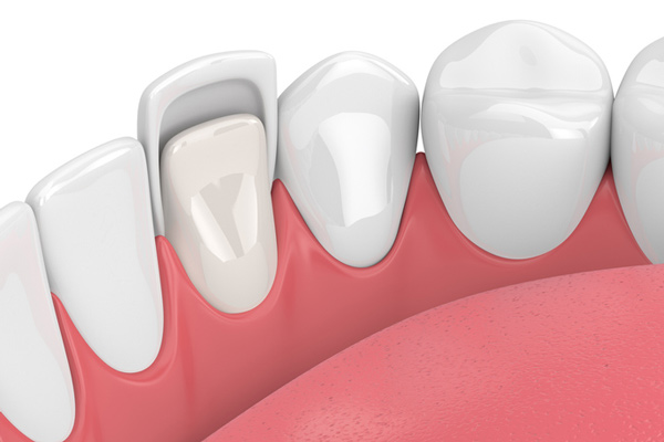 3D Rendering of teeth with a ceramic veneer